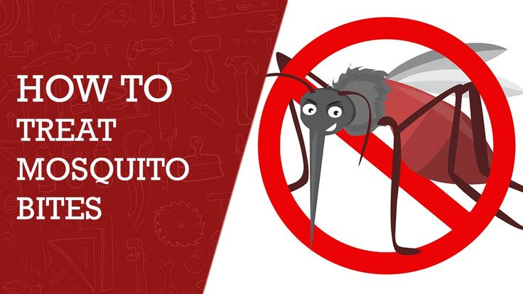 How to Treat Mosquito Bites -  Home Remedies to Stop the Itchiness