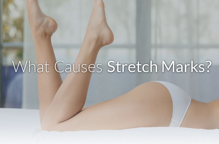 Wondering about recent stretch marks? You're not alone. https://rejuvaskin.com/causes-stretch-marks/