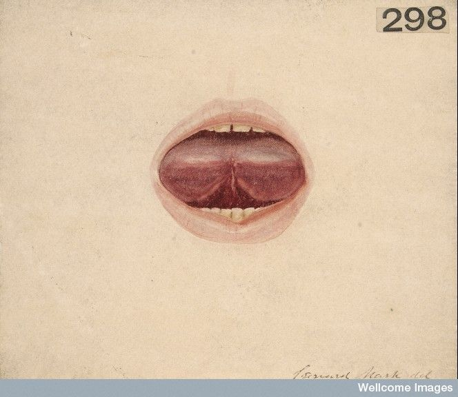 Tongue of a boy in a state of acute glossitis