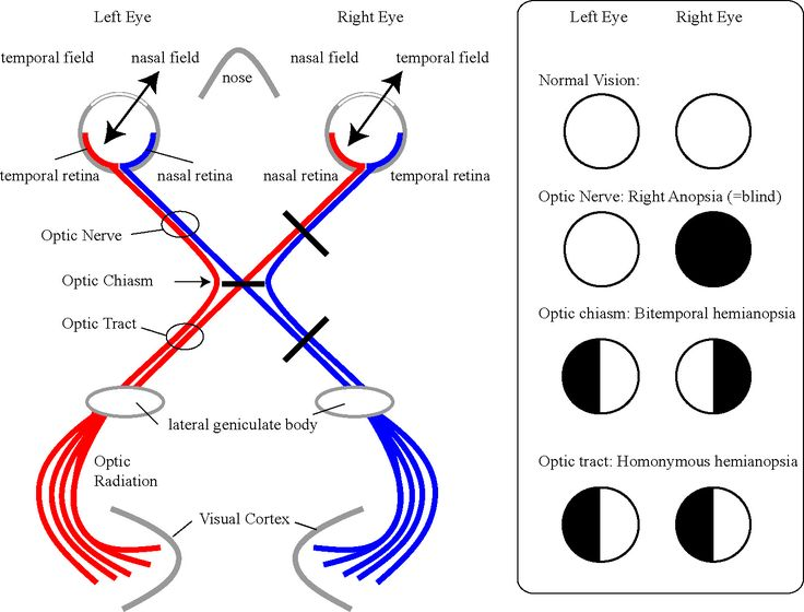 Nasal field displayed on temporal retina, respective optic nerve does not cross at optic chiasma (already showing opposite side of head view), --------temporal view displayed on nasal retina and respective optic nerve crosses optic chiasma turning into optic tract and entering the lateral geniculate nucleus (collection of somas) located in the thalamus and then proceeds out to the cebral cortex (visual cortex, occipital lobe). Input also to superior colliculus (inferior colliculus is…