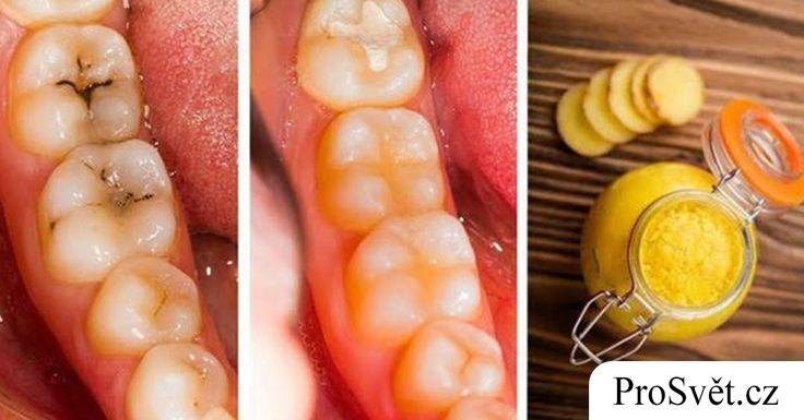 Ověřené domácí tipy, jak se zbavit zubních kazů a bolesti zubů! | ProSvět.cz