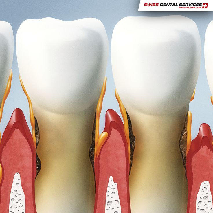 Did you know that around 70% of tooth loss is linked to gum disease, also called periodontal disease?  This bacterial infection attacks the gums, teeth and healthy bone tissue. Without treatment, the connections between the teeth and gums are destroyed, causing the loss of bone and teeth.    Periodontitis, the most serious gum disease, is the main cause of tooth loss in adults aged 65 years or over. -------------------------------------------- www.swissdentalservices.com/en