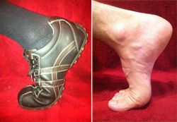 Turf Toe info.  It is almost football and soccer season! OrthoInfo - AAOS