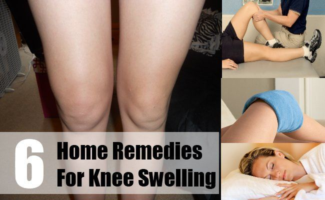6 Home Remedies For Knee Swelling | http://www.searchhomeremedy.com/home-remedies-for-knee-swelling/