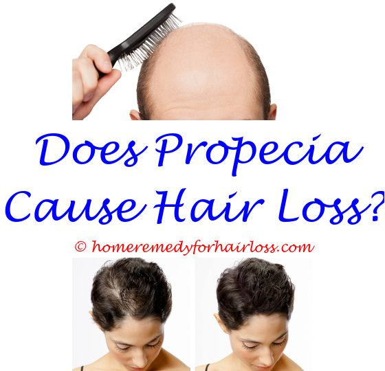hair loss from hcg diet - hair loss enzyme deficiency.best shampoo for thinning hair and hair loss philippines benefits of vitamin c for hair loss jbco hair loss 3333976695