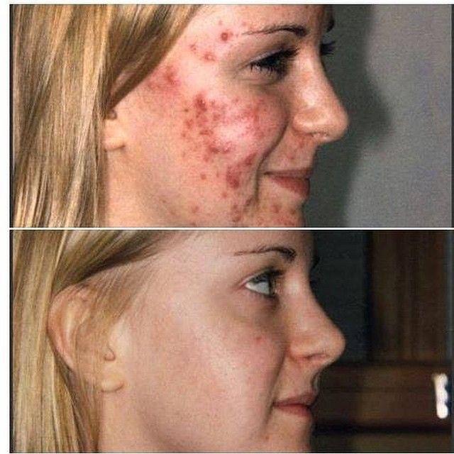 Rosecea acne