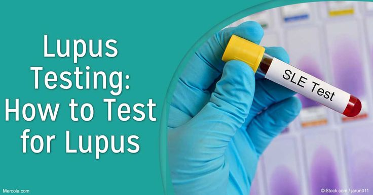 There are several tests you can undergo to reach a final diagnosis for lupus. Learn the different types of tests in this article. http://articles.mercola.com/lupus/testing.aspx