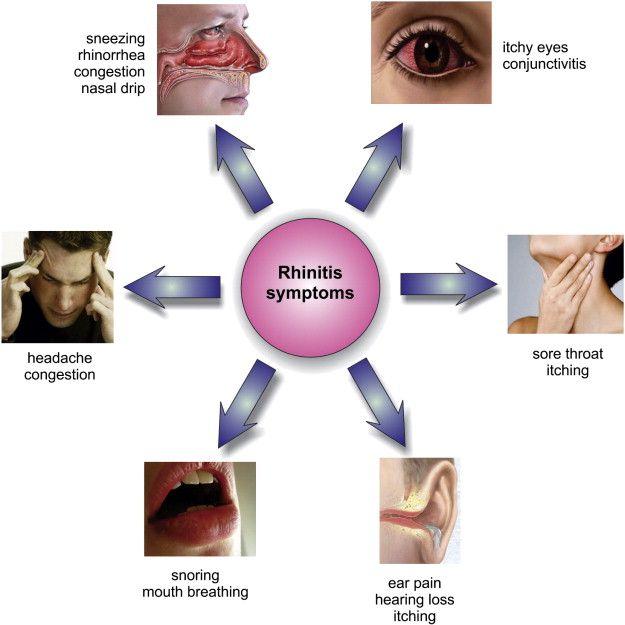 Allergic Rhinitis Asthma Symptoms Asthma Allergic Rhinitis