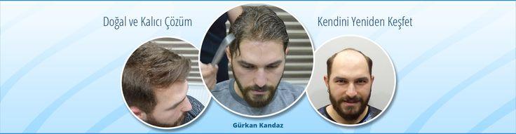 Demohair protez saç kimlere uygulanır? Demohair saç protezi, geçici ve ya kalıcı her türlü saçdökülme  kayıplarına çare olan protez saç uygulaması  son derece doğal doğru bir yöntemdir. Saçların seyrek oluşu veya hiç olmaması uygulama açısından bir  farklılık yaratmaz.Demohair saç protezi erkek bayan cinsiyet farketmeksizin uzun veya kısa, protez saç yapılmakta her saç rengine kalınlık veya incelik yapısına göre uygun olarak uygulanmaktad #demohairprotezsac #sacdökülmesi #sactedavisi…