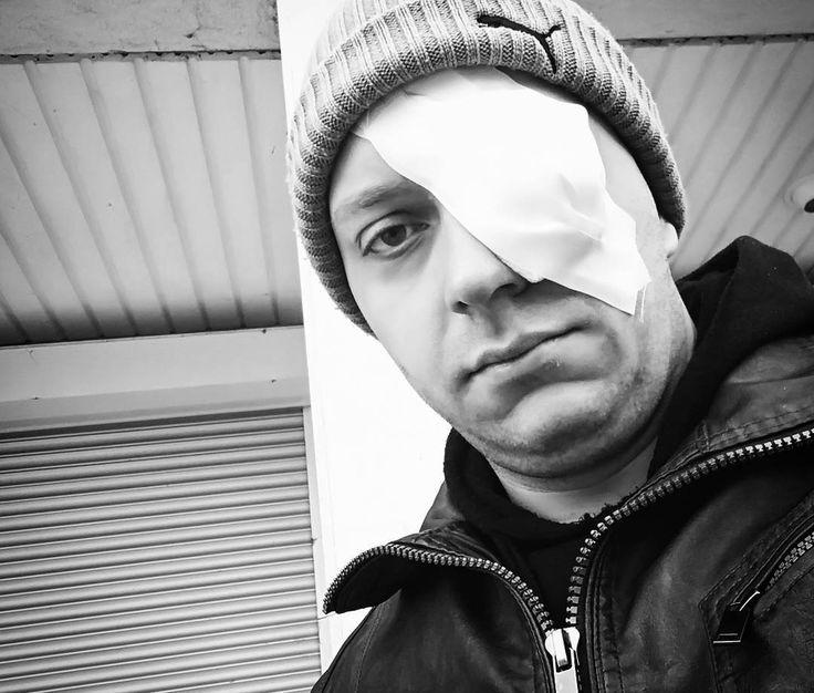 Ab jetzt geht es unter die Piraten!  #ouch #pirat #augenklappe #pirate #hurt #oneeye #auge #augekaputt