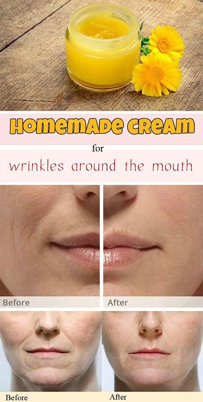 #1. Get rid of wrinkles naturally with a homemade skin cream. You need 200 grams of beeswax, 750 ml olive oil and fresh marigold flowers. Place all ingredients over low heat to warm and let it boil for a minute. Leave the mixture overnight and the next morning, heat up all the ingredients again. Put the concoction into containers. Use the cream on wrinkles every day for at least two weeks.
