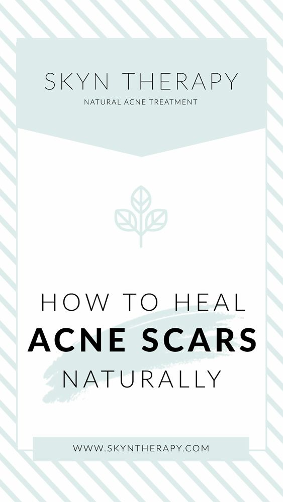 Scarring 101: How to heal acne scars naturally