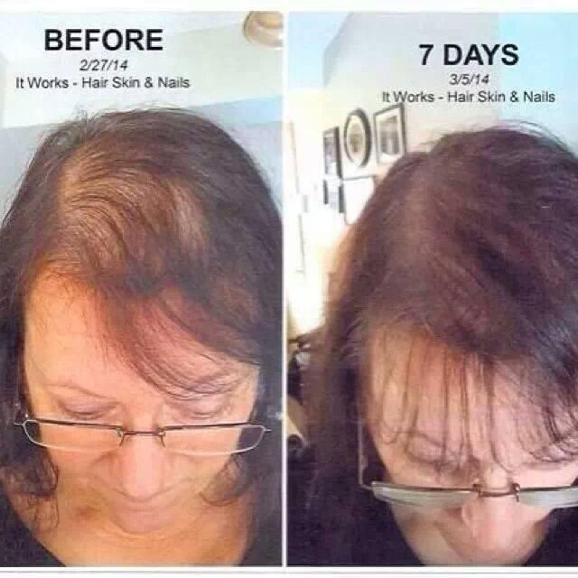 It Works Hair Skin And Nails Ingredients – Best Nail 2018
