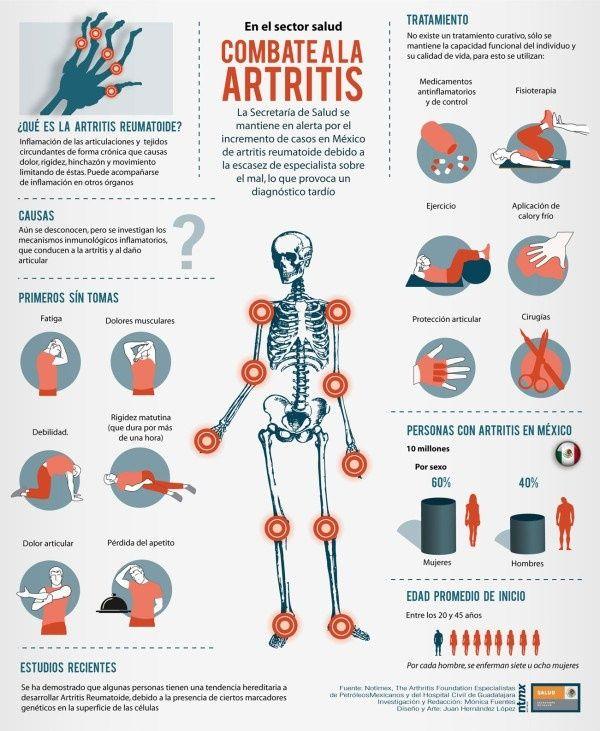 Infografía en la que podemos ver los síntomas de la artritis, que la produce y los posibles tratamientos. http://www.farmaciafrancesa.com/main.asp?Familia=189&Subfamilia=267&cerca=familia&pag=1&p=223