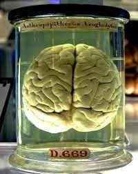 Harus dan Wajib Tahu Inilah 5 Fakta UnikTentang Otak Manusia  5 Fakta UnikTentang Otak Manusia - Otak merupakan organ tubuh yang paling penting yang penempatannya di dalam tengkorak. Otak manusia adalah struktur pusat pengaturan yang memiliki volume sekitar 1.350cc dan terdiri atas 100 juta sel saraf atau neuron.Hingga sekarang ini otak masuh jadi pertanyaan yang besar untuk manusia seperti bagaimana caranya kerjanya apakah otak pernah beristirahat dsb.  #Baca juga artikel / berita lainnya…