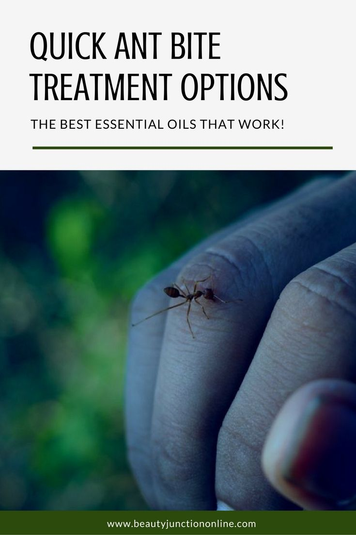 Discover the best ant bite treatments