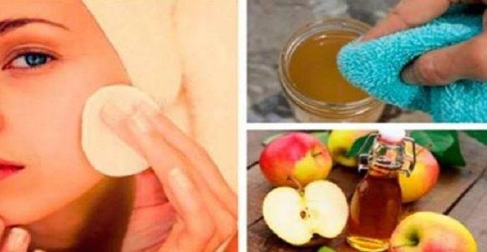 O vinagre de maçã proporciona diversos benefícios à nossa saúde.  Ele se destaca principalmente por ajudar a tratar problemas da pele, como marcas de expressão, acne e espinhas.