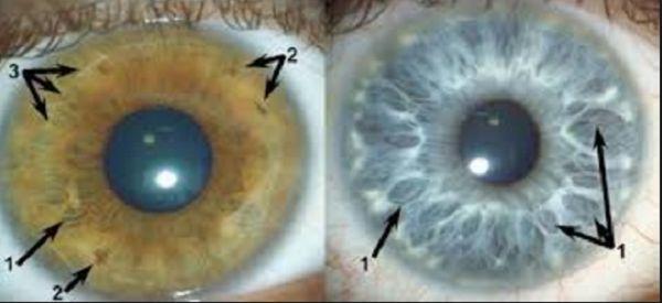 Quieres aclarar tus ojos y aumentar tu vision en un 200%, 2 gotas antes de ir a dormir y a la mañana veras el milagro. Esto funciona que esperas!