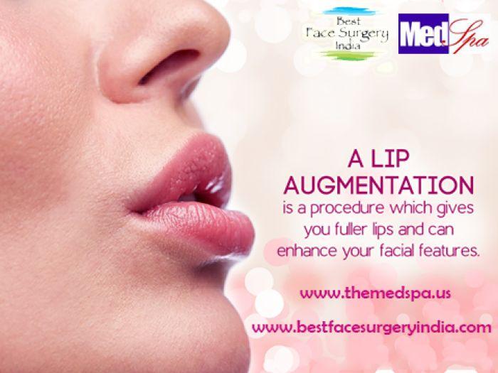 Lip augmentation surgery – What to expect during the procedure?  #lipaugmentationindelhi