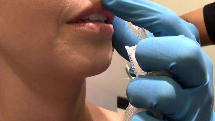 Dr. Arash Akhavan: Lip Injections in NYC