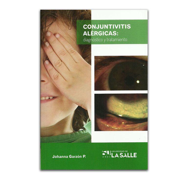 Conjuntivitis alérgicas: diagnóstico y tratamiento – Johanna Garzón P – Universidad de la Salle www.librosyeditores.com Editores y distribuidores.