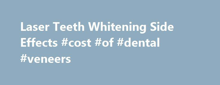 Laser Teeth Whitening Side Effects #cost #of #dental #veneers  #laser whitening # Laser Teeth Whitening Side Effects Do you need whiter teeth immediately? Forget teeth wh http://reviewscircle.com/health-fitness/dental-health/natural-teeth-whitening/