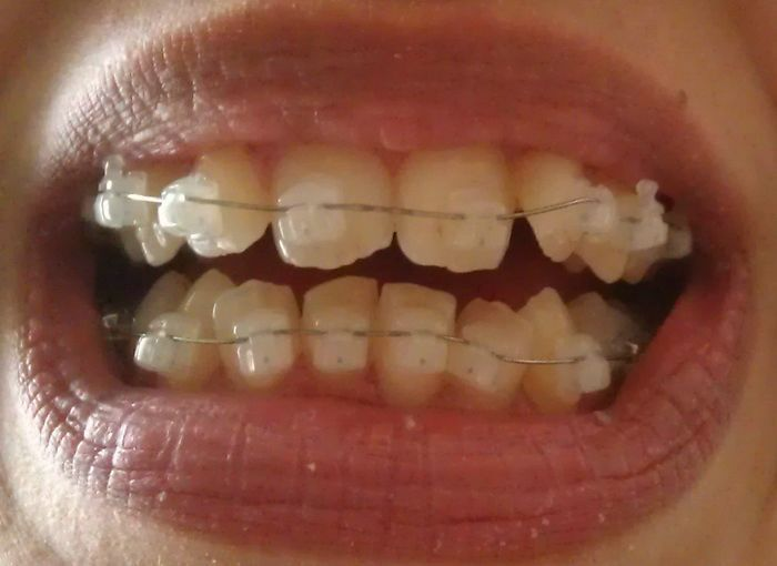 Clear Braces Cost Glasgow