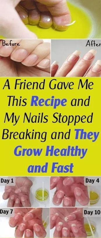 HOME REMEDIES A Buddy Gave Me This Recipe and My Nails Stopped Breaking and They Develop Wholesome