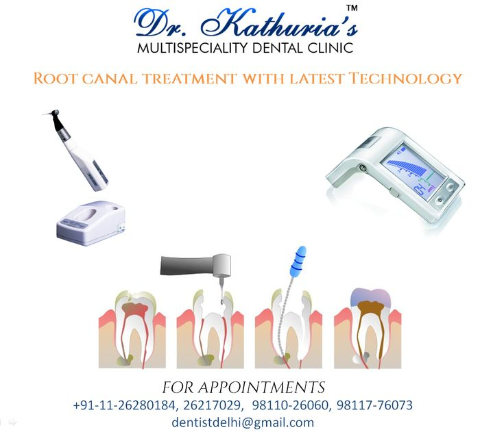 Painless Root Canal Treatment with Latest Technology at Dr.Kathuria's Multispeciality Dental Clinic #PainlessRCT #RootCanalTreatment