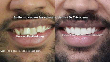 "Smile makeovers by Expert Cosmetic dentist Dr Trivikram Rao (Dr Vikram) have enhanced thousands of smiles in the last 16 years. Skillfully blending science and art, Dr Vikram can ""sculpt"" a more attractive smile for you in just 3-4 visits in 5-7 days. A smile is a powerful way for you to communicate. A new smile will help make a great impression – both personally and professionally. ALL SMILES - located only at - N0.64, SHANKAR MUTT ROAD, BASAVANAGUDI, BANGALORE-560004. NO OTHER BRANCHES."
