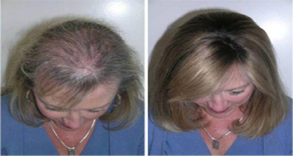 Tento olej je skvelý pre zahustenie a obnovenie vlasových korienkov, zhustenie mihalníc a obočia. - Báječný lekár