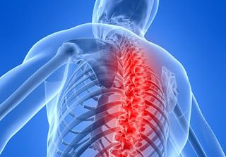 Obat Sakit Belakang,sakit pinggang belakang,sakit belakang badan,sakit kepala,sakit kepala belakang,sakit kepala belakang sebelah kanan,sakit kepala belakang bawah,nama obat sakit kepala,obat sakit,