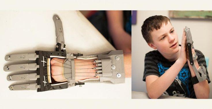 Les imprimantes 3D au service de la médecine