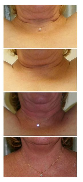 Cellulite: Lypossage Cellulite Body Wraps & Treatments, Massage. These amazing results were a bonus to removing excess lymphatic drainage in the body as well as removing toxins from fat cells. A Natural Face Lift to show off those diamonds!