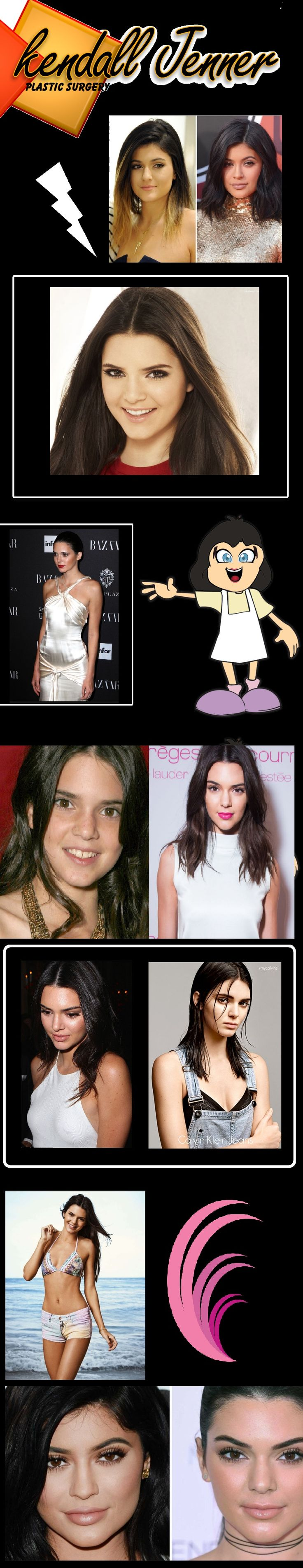 I don't know if # kendall Jenner plastic surgery But pictures does tell something.