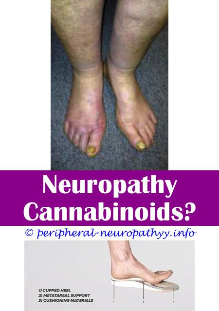 Does Small Fiber Neuropathy Get Worse   Neuropathy Pain Relief