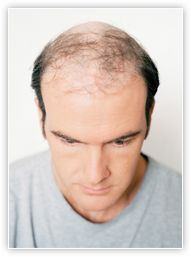 Manligt håravfall Vi vet att det inte är en tröst men du är inte ensam!  70 procent av männen upplever någon form av håravfall under sin livstid. Oavsett om detta inträffar i tonåren eller senare kan det vara förödande – att titta dig själv i spegeln och se någon som inte ser ut