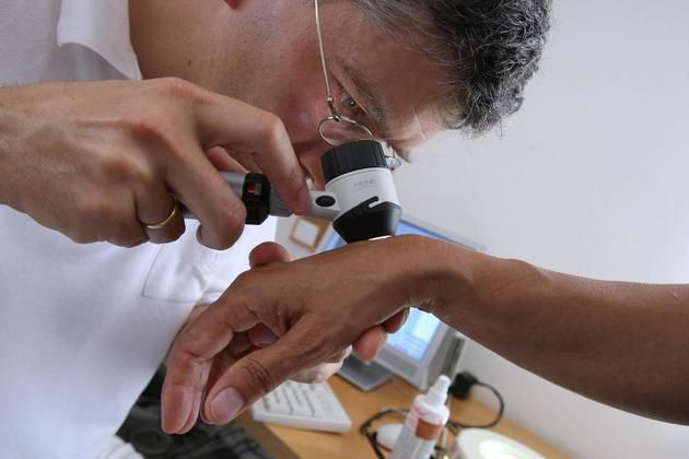 #Hautkrebs auf Vormarsch - Schwäbische: Schwäbische Hautkrebs auf Vormarsch Schwäbische Der Hautarzt erkennt den Hautkrebs. Wer viele…