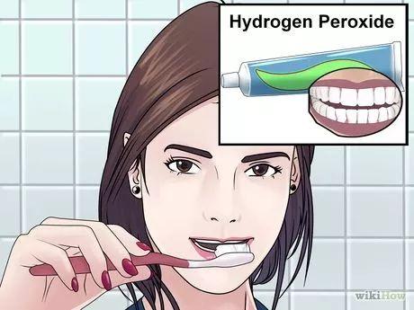 Zähne natürlich und wirksam aufhellen. Mehrere Methoden.
