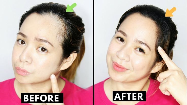 How to naturally grow back thinning hair line cover up