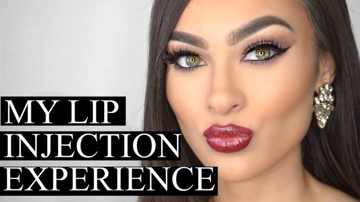 My Lip Injections (Juvéderm Ultra Plus) + Meet My Doctor + FAQ's