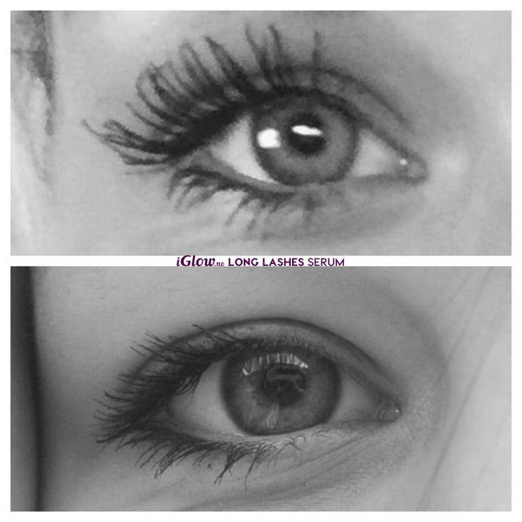 Før og etter iGlow Long Lashes Serum
