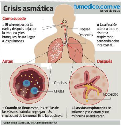 Cómo sucede la crisis de asma