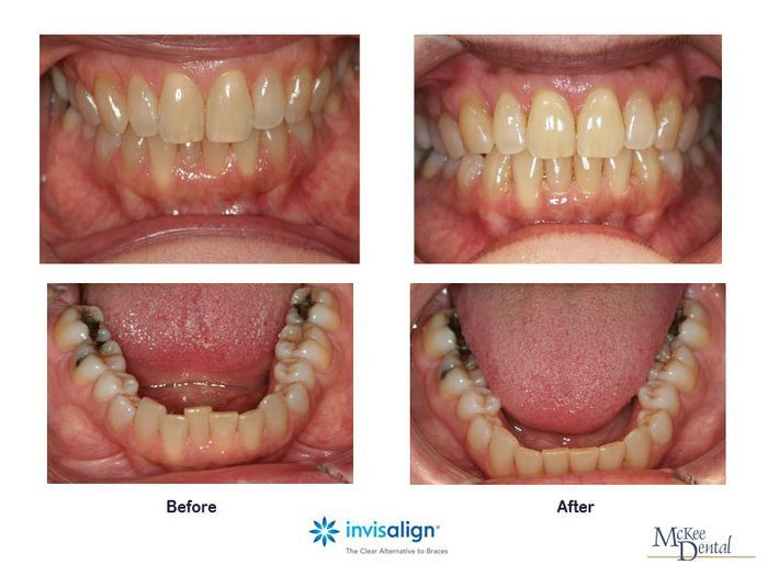 17 Best Images About Invisalign On Pinterest Cleanses