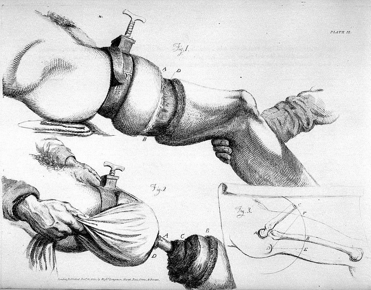 The operation of amputation at the thigh - Illustrations of the great operations of surgery - Chirurgie. Amputations. Jambes - 03280