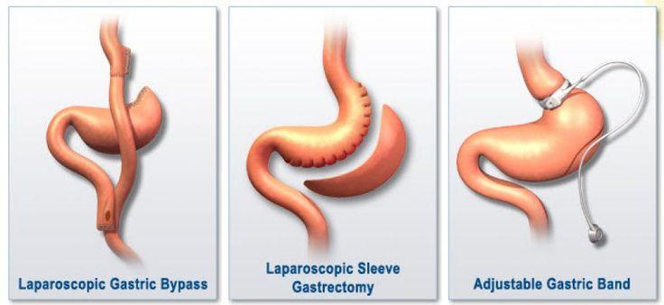 Χειρουργική της παχυσαρκίας