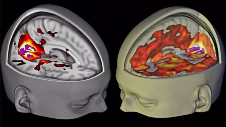 Researchers want to know the effects of taking small doses of LSD to self-medicate