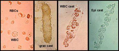 Urine Casts