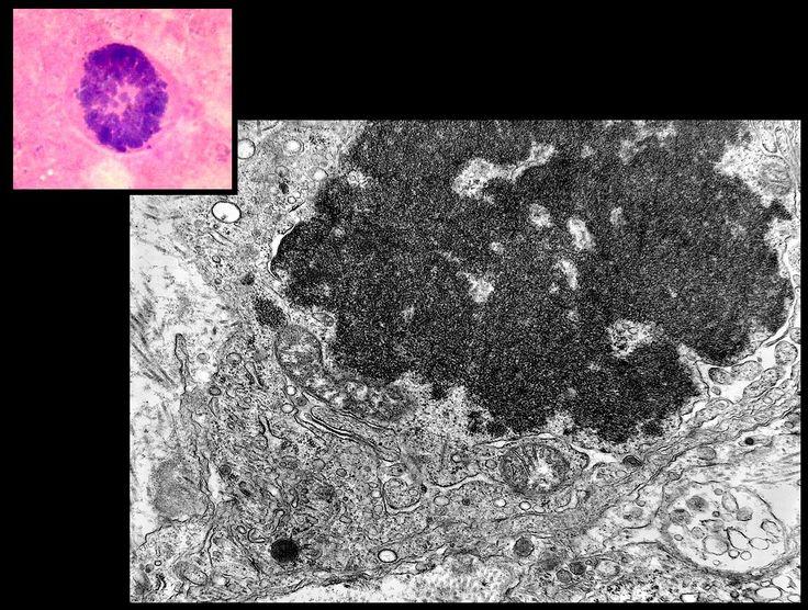 celulas microscopio eletronico - Pesquisa Google