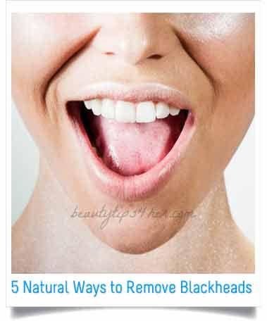 5 Natural Ways to Remove Blackheads | Look Good Naturally